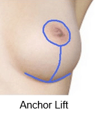 anchor-lift