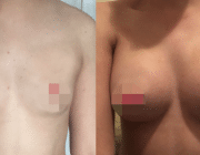 CosMediTour Breast Augmentation
