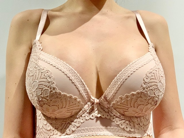 Breast Augmentation Results Review 351