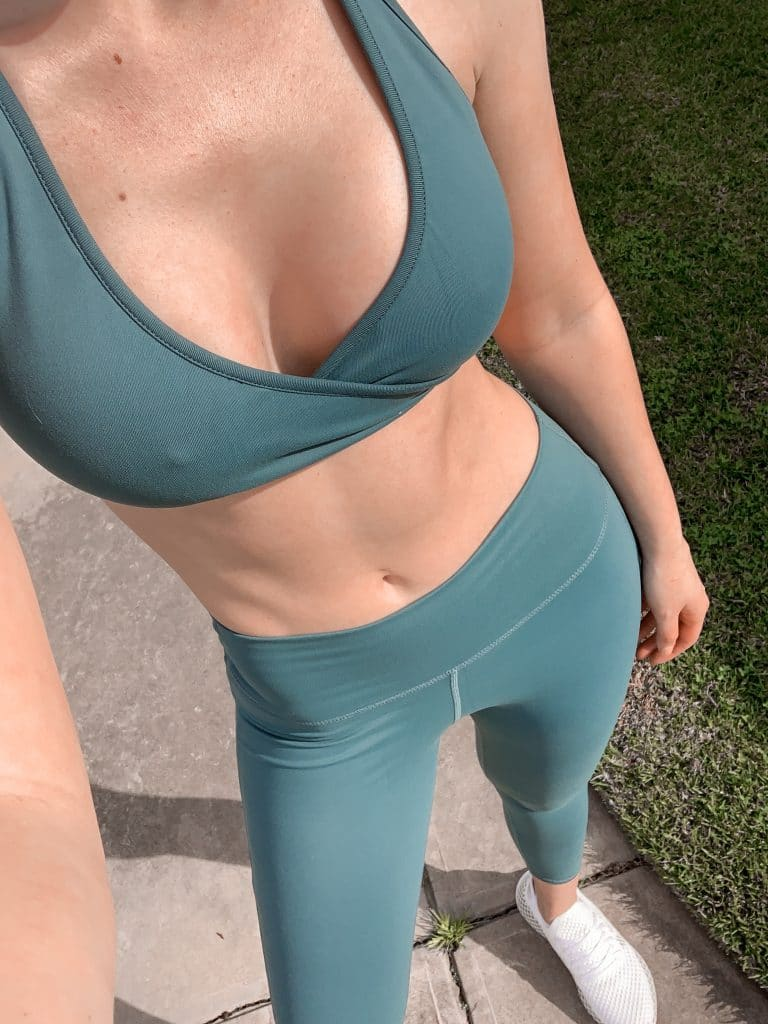 Breast Augmentation Results Review 363