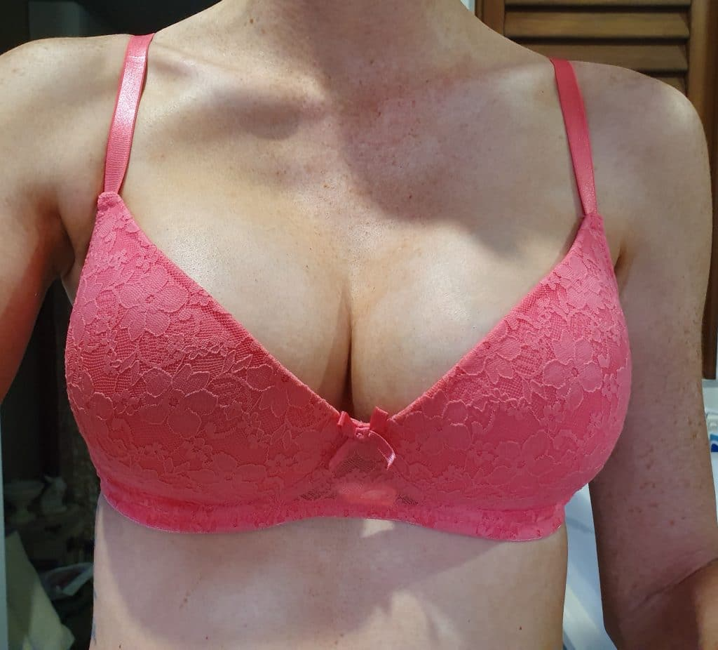 Breast Augmentation Results Review 360
