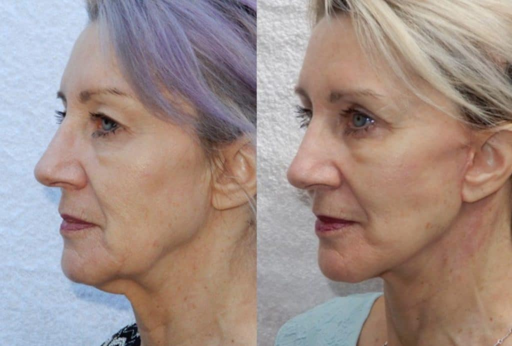 CosMediTour Facelift