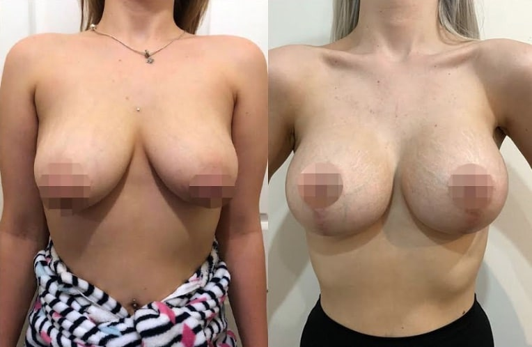 Breast Lift + Augmentation CosMediTour