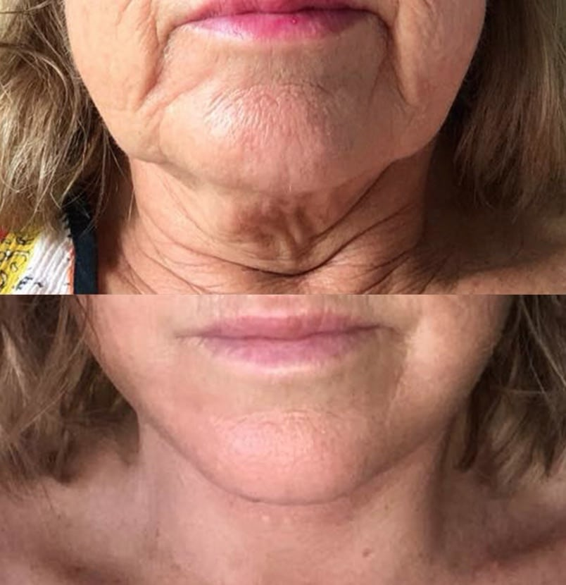 CosMediTour Facelift Transformation