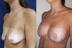 CosMediTour Breast Lift + Augmentation