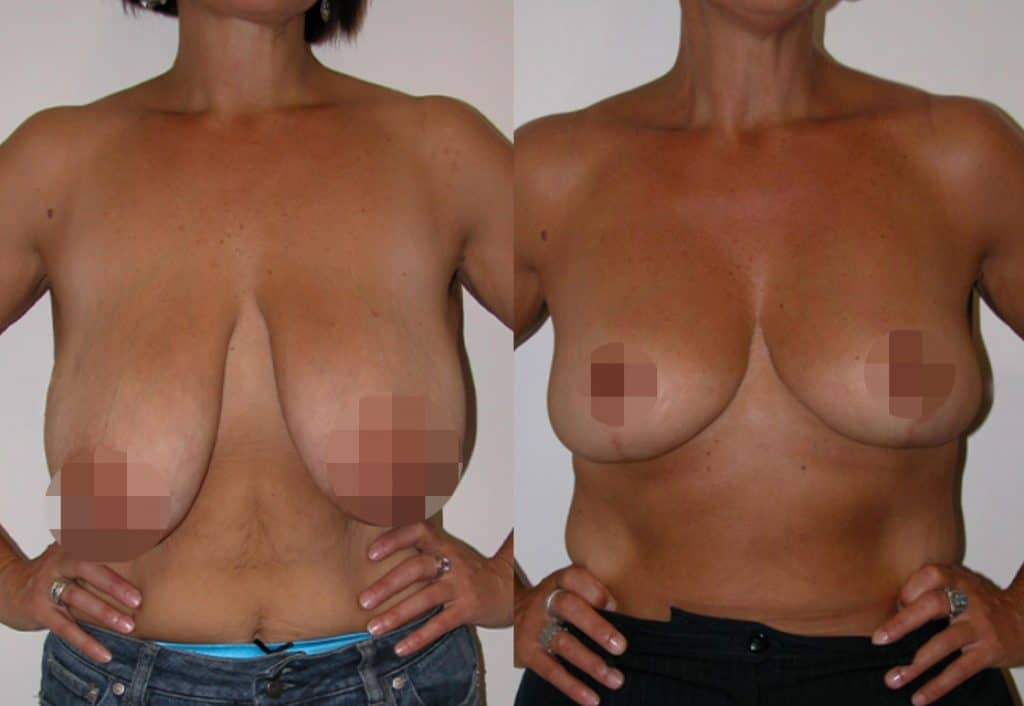 Breast Lift Jeremy Hunt CosMediTour