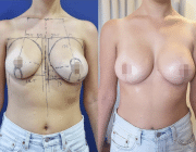 Breast Lift + Augmentation