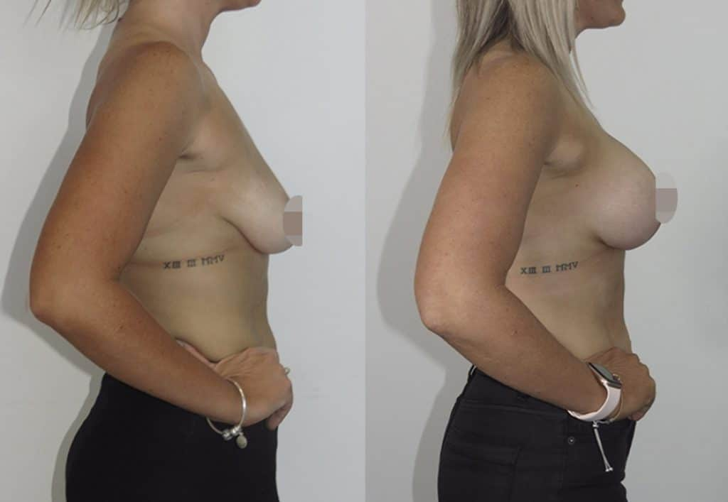 CosMediTour Breast Lift + Augmentation by Dr. Jeremy Hunt