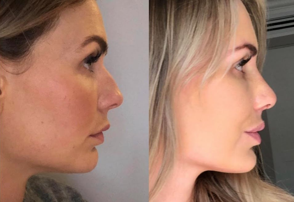 CosMediTour Rhinoplasty Results