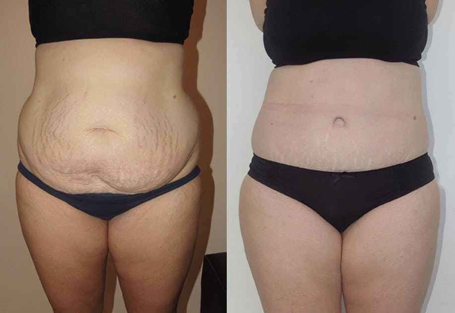 Tummy Tuck by Dr. Jeremy Hunt - CosMediTour