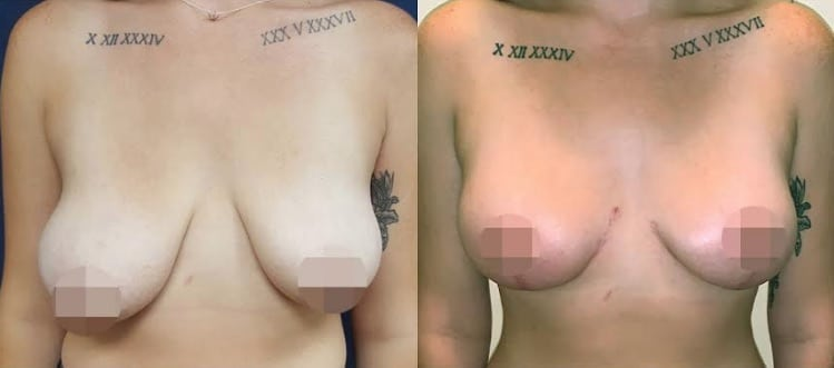 cosmeditour breast reduction gold coast